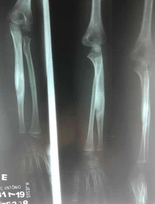 Radiografía anteroposterior (AP) y lateral (L) del antebrazo izquierdo. Mostraba una lesión lítica de borde escleroso localizada en la diáfisis del cúbito izquierdo con perforación del hueso cortical.